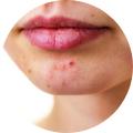 Aromathérapie & Problèmes de peau