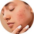 Guérisseur & Problèmes de peau