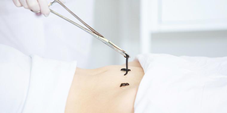 Sangsues médicinales : petites mais costaudes !