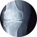 Kinésithérapie & Douleurs articulaires