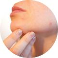 Magnétisme & Problèmes de peau