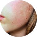 MTC & Problèmes de peau